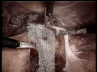 Difetti del pavimento pelvico